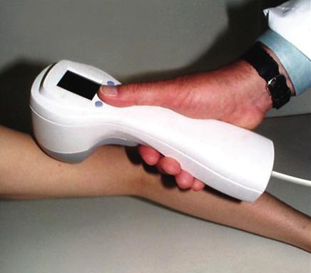 Early Detection Device For Melanoma Gets Fda Ok